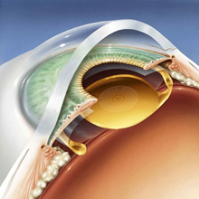Multifocal lens implants